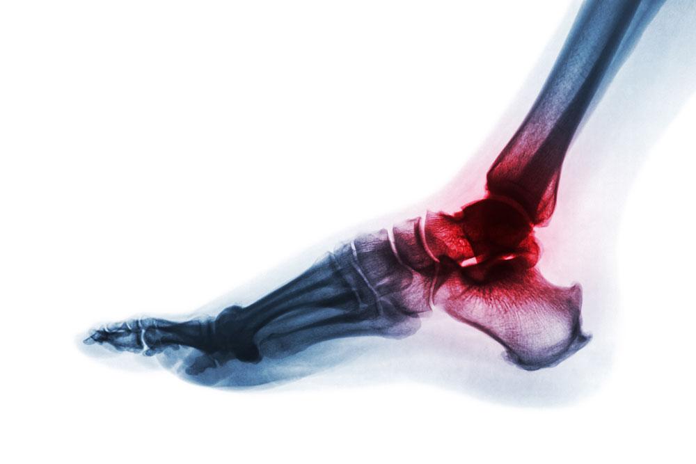 Piede reumatico - rheumatoid foot
